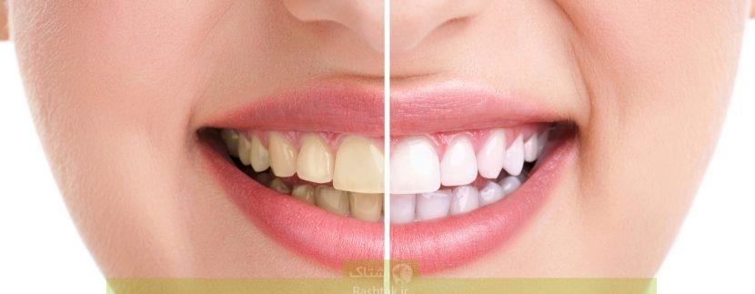 شخصیتشناسی جالب از روی شکل و شمایل دندان!